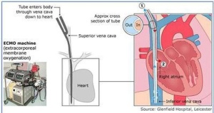 How ECMO works